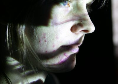 projection on skin test 1